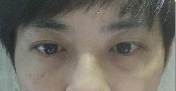 我的醫美初體驗-打玻尿酸改善眼袋淚溝黑眼圈,還我明亮眼眸 - 第3张  | 優雅筆寄